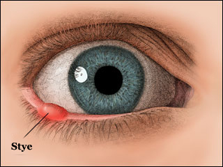 how to prevent a stye