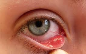 how long does viral pink eye last 1