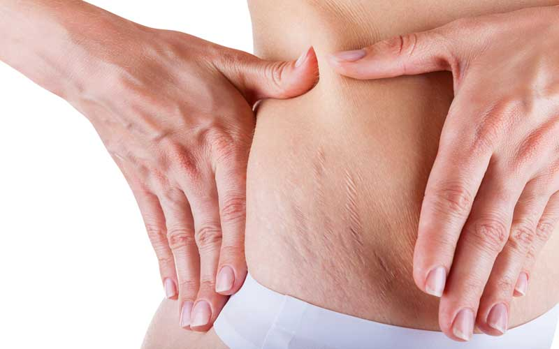 how to get rid of stretch marks fast 1