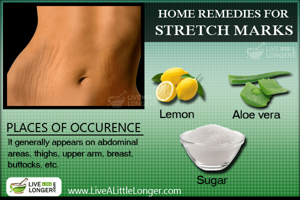 How To Get Rid Of Stretch Markss With Natural Remedies