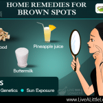 Home remedies for brown spots