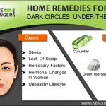 Home remedies for dark circles under the eyes