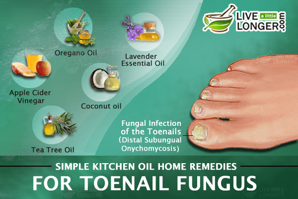 Home Remedies For Toe Nail Fungus