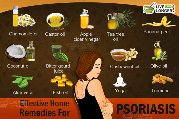 Previous Previous post: Plaque Psoriasis Home Remedy Treatment 1