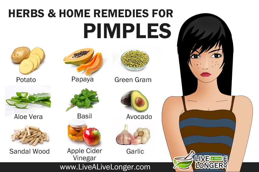 Best Home Remedies For Pimples