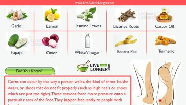 home remedies for corns on feet