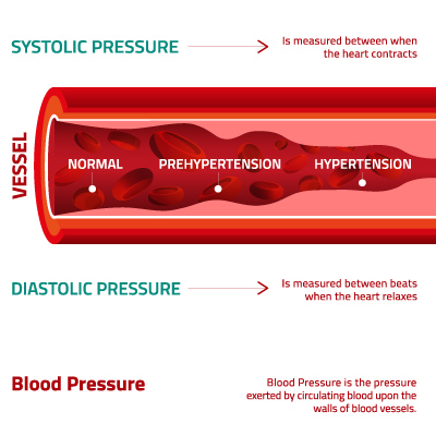 what is systolic and diastolic pressure