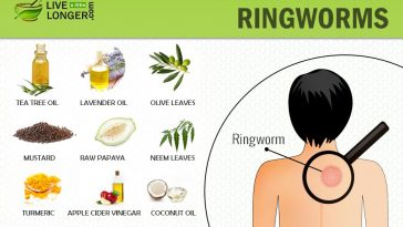 home remedies for ringworms