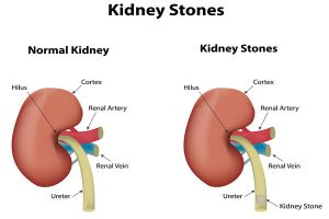 what are kidney stones made of