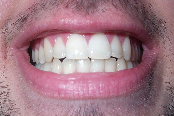 oil pulling leads to whitening of teeth