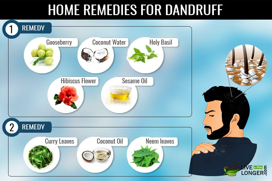 a report on home remedies for dandruff If home remedies don't help your symptoms, talk with your doctor about prescription topical treatments to treat malassezia treatment for malassezia is usually anti-dandruff shampoo or topical.