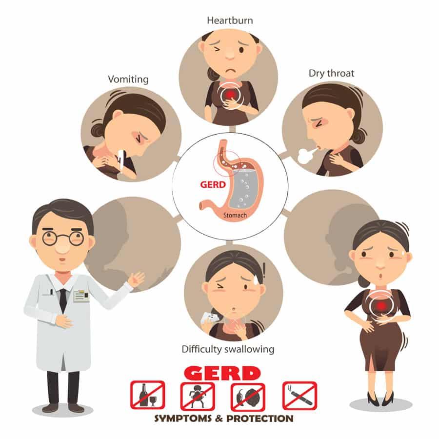 acid reflux symptoms