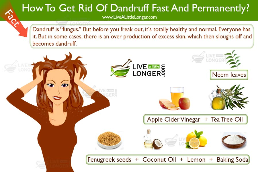 How to permanently get rid of dandruff