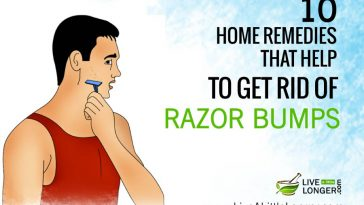 how to get rid of razor bumps under chin