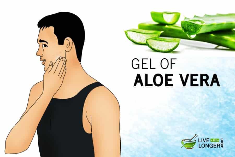 how to treat razor bumps