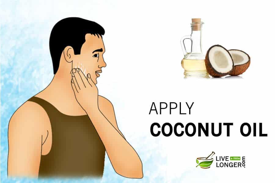 remedies for razor bumps