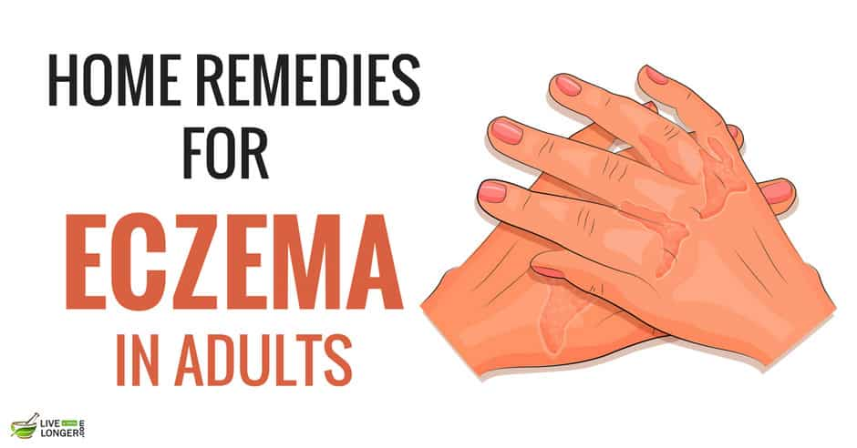 Home Remedies For Eczema In Adults