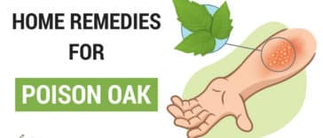 Home Remedies For Poison Oak
