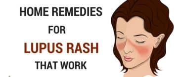 Home Remedies for Lupus Rash