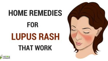 Home Remedies for Lupus Rash