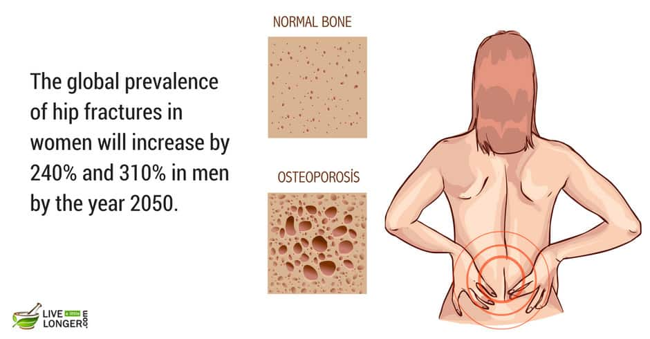 common bone diseases