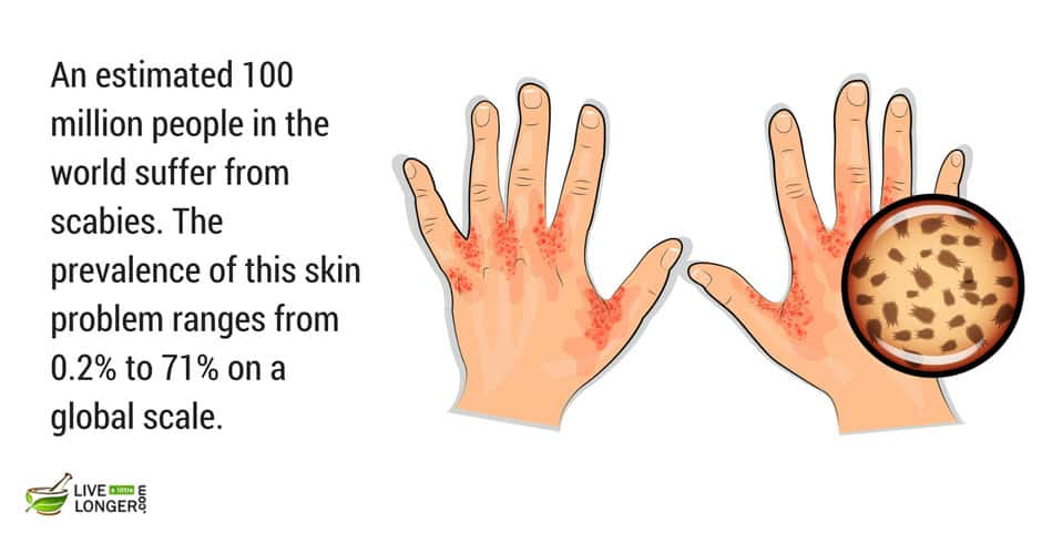 most-common-skin-diseases