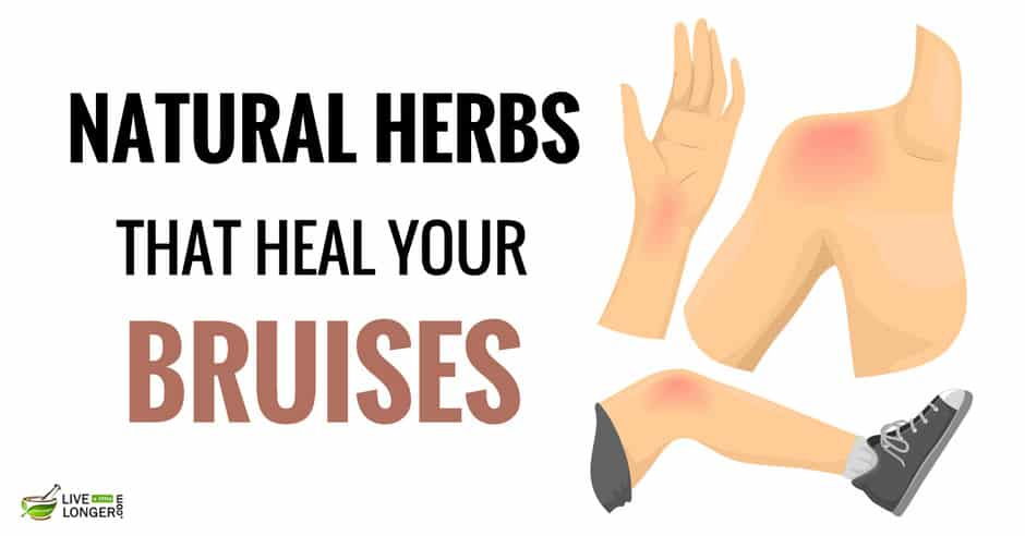 natural remedies for bruises