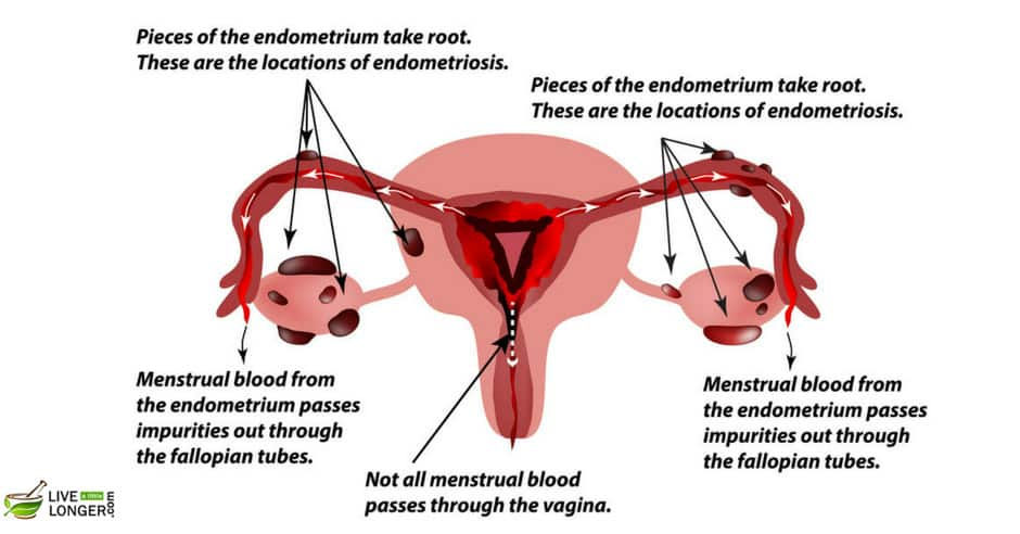 Occurrence of Endometriosis