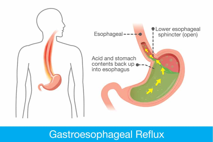 Natural Cures For Heartburn And Reflux