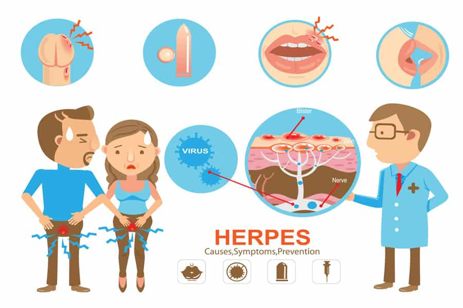 signs and symptoms of herpes