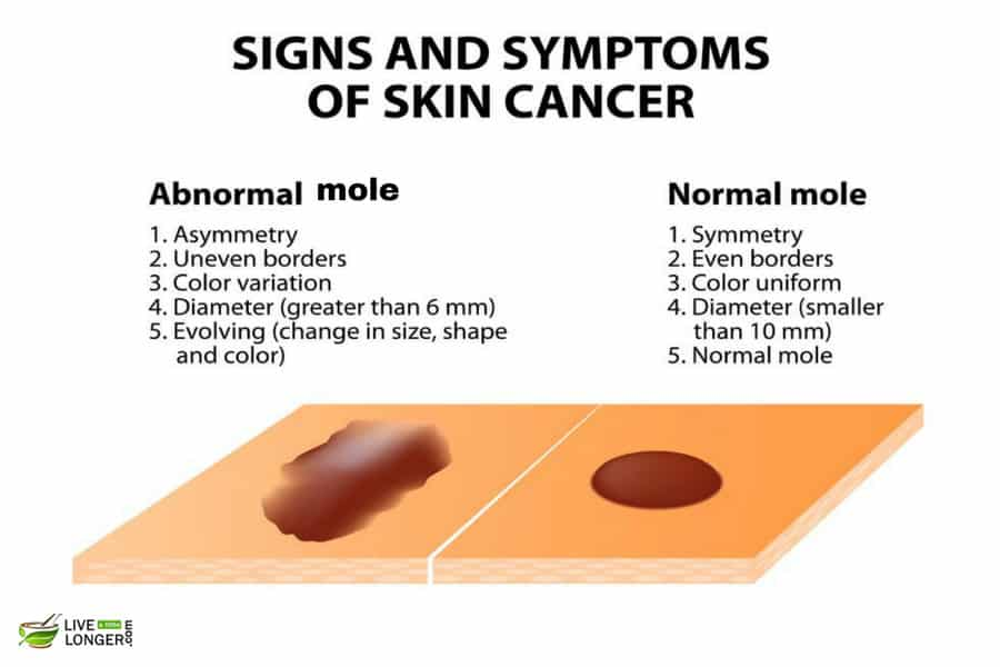 Symptoms of Melanoma
