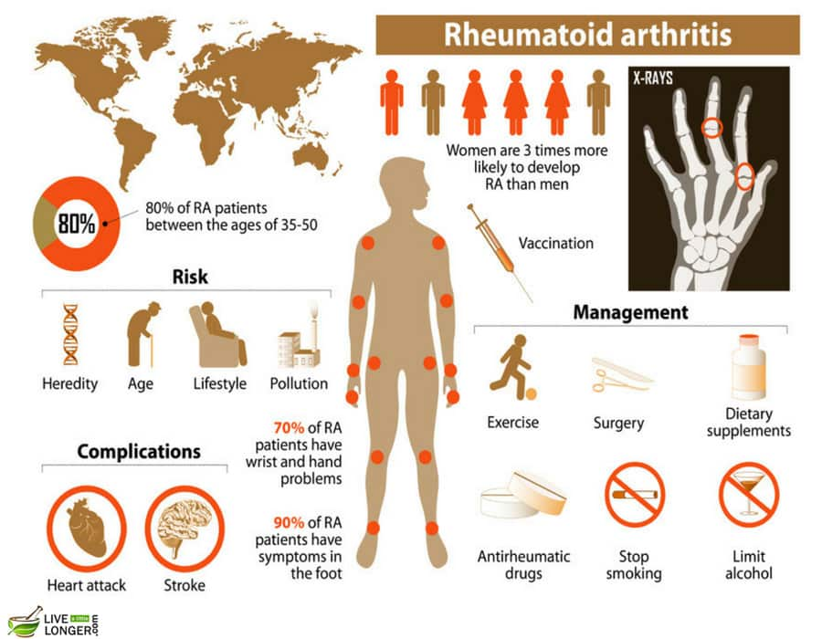 interesting facts about arthritis