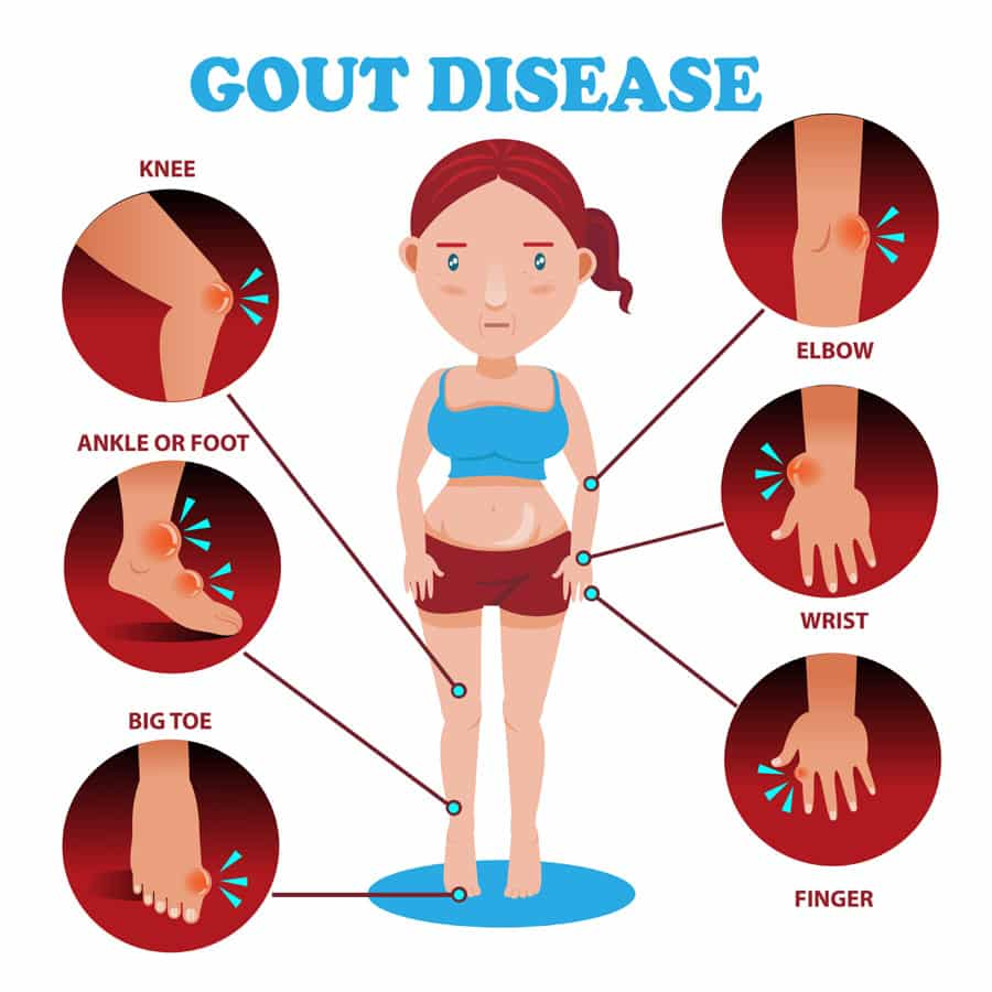 gout symptoms foot arch gout pain shoulder gouty arthritis webmd