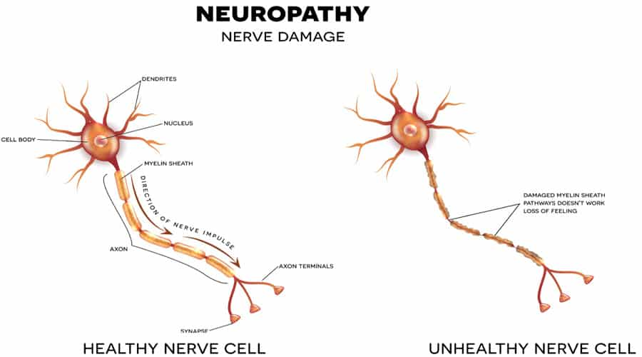 treatment for nerve pain