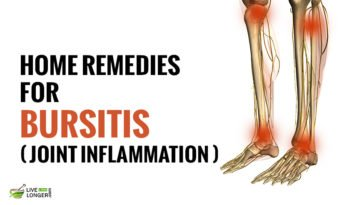 Best remedies For Bursitis