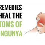Best Home Remedies For Chikungunya