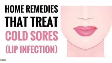 best Home Remedies For Cold Sores