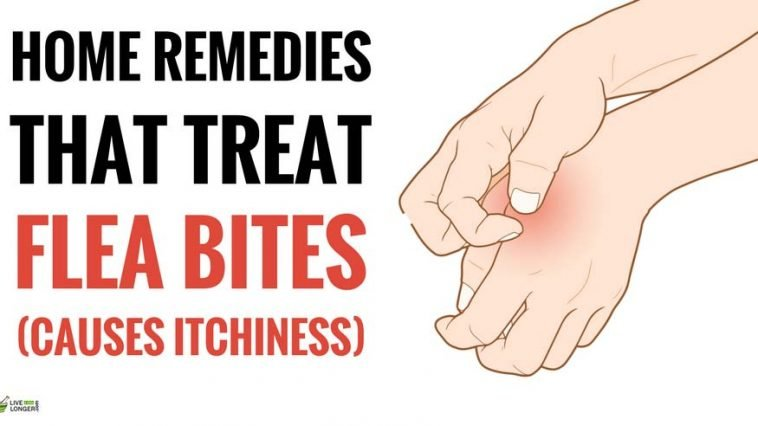 best home remedies for flea bites