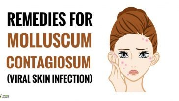 natural home remedies for molluscum contagiosum