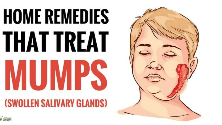 best home remedies for mumps