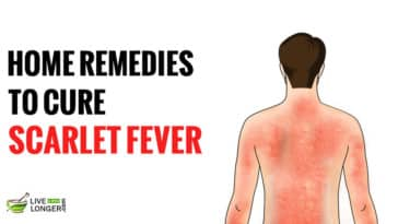 scarlet fever rash treatment