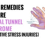 remedies for carpal tunnel syndrome