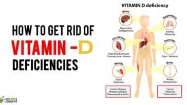 vitamin d deficiency