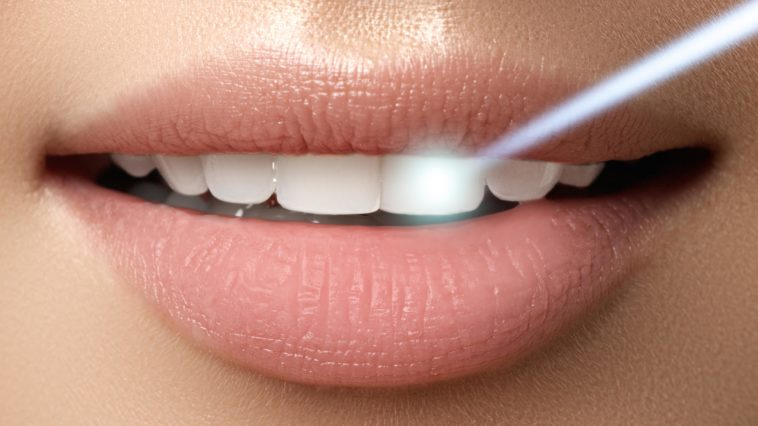 5 Natural Ways Tooth Whitening Can Be Done in Your Home