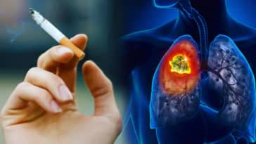 Non-Smokers Need To Be Cautious Against Cancer1