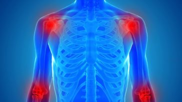 supplements for inflammation