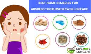 home remedies for abscess tooth with swollen face_lll